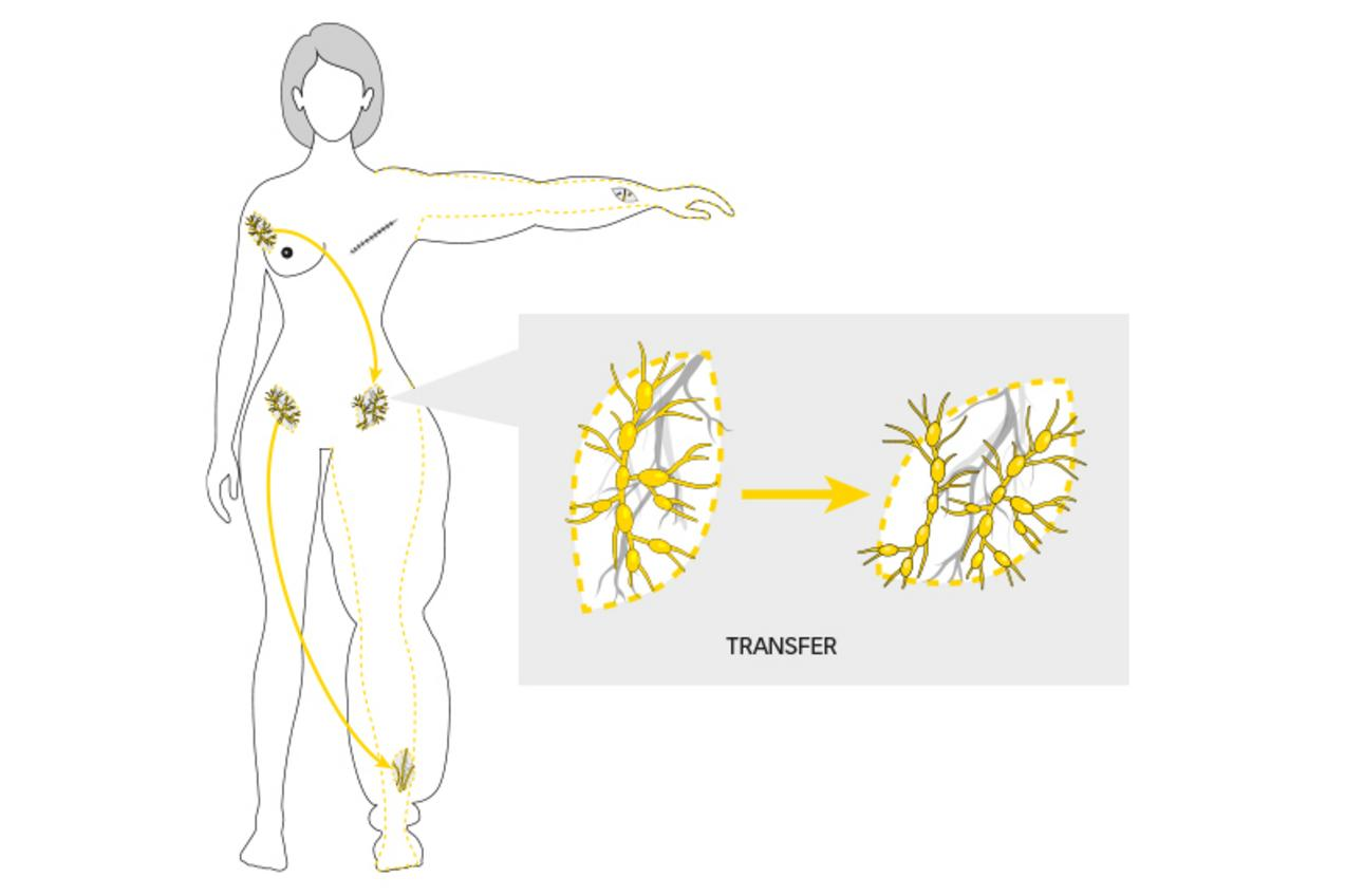 web illustration lymphedema 02