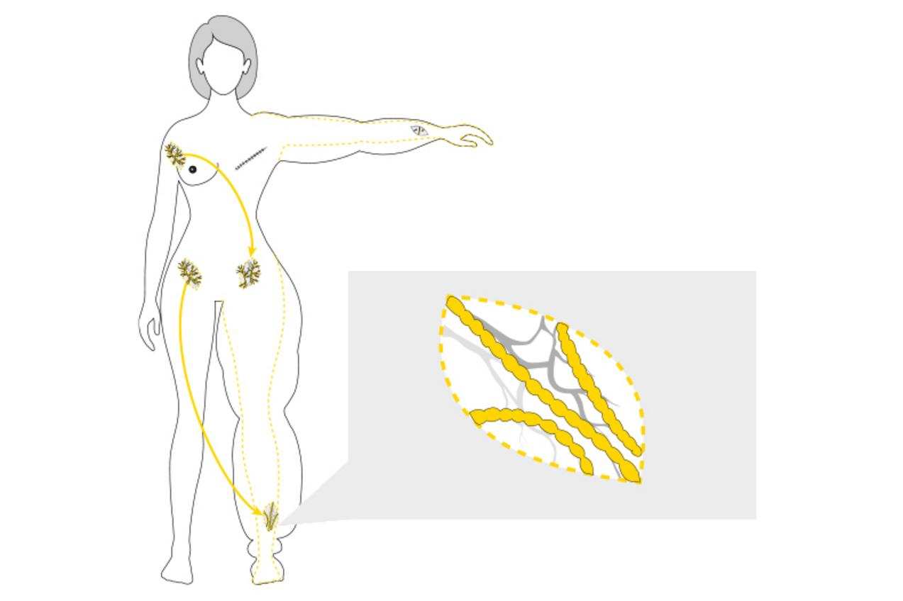 web illustration lymphedema 03