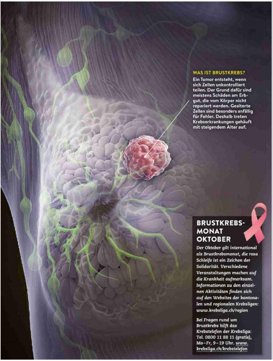 gemeinsame websites von brustkrebs metastasen