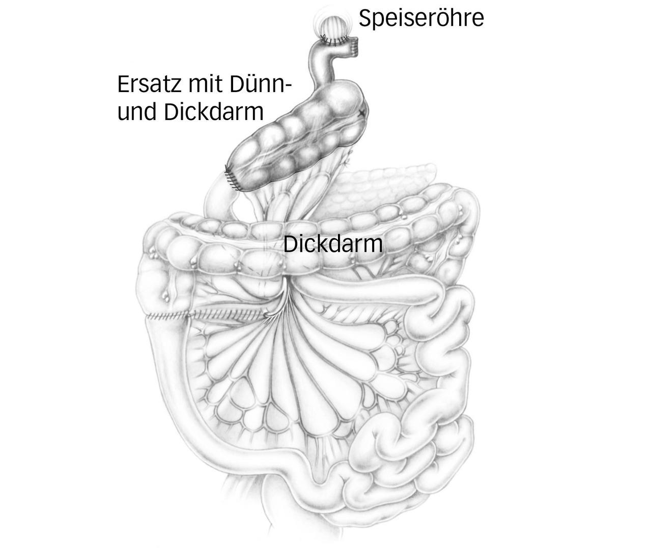 Magenkrebs | Luzerner Kantonsspital